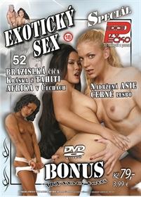 Obrázek DVD Edice Péčko Speciál 52